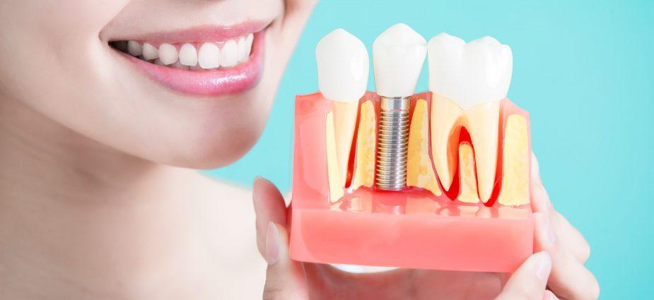 implant dentar pret cluj